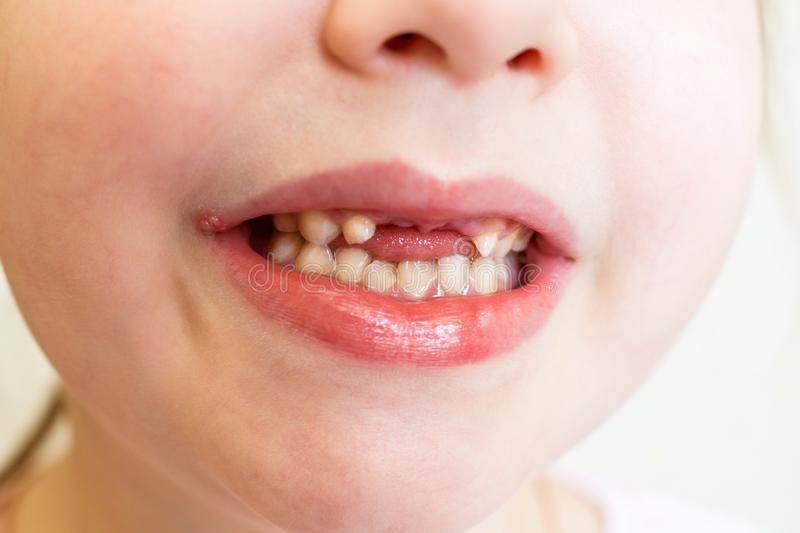 Herp?s sur les l?vres du b?b? Le b?b? montre un sourire avec manquer les dents avant Onguent de traitement Foyer s?lectif image libre de droits