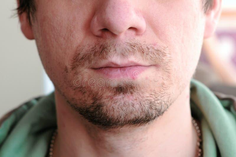 herpès traitement de lèvre Plan rapproché des lèvres du ` s d'homme avec l'herpès Front View image libre de droits