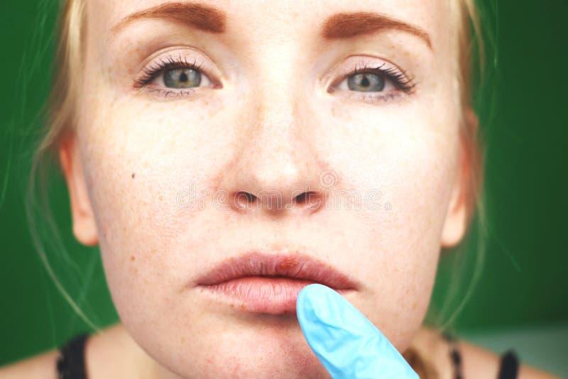 Herpes auf den Lippen, Teil eines Frau ` s Gesichtes mit dem Finger auf Lippen mit Herpes, Schönheitskonzept lizenzfreie stockbilder