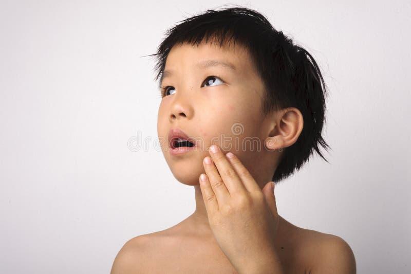 Herpes auf Jungenmund stockbild