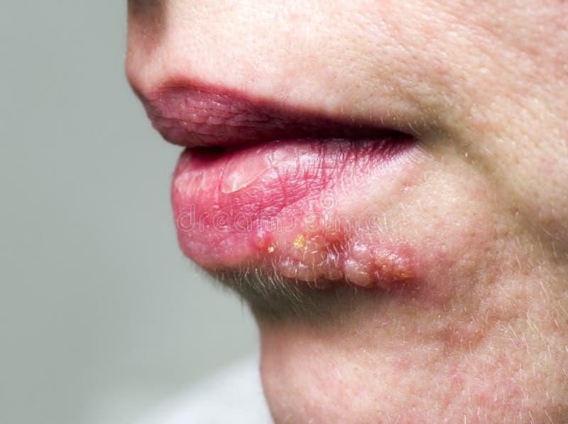 Herpes auf Lippe stockbilder