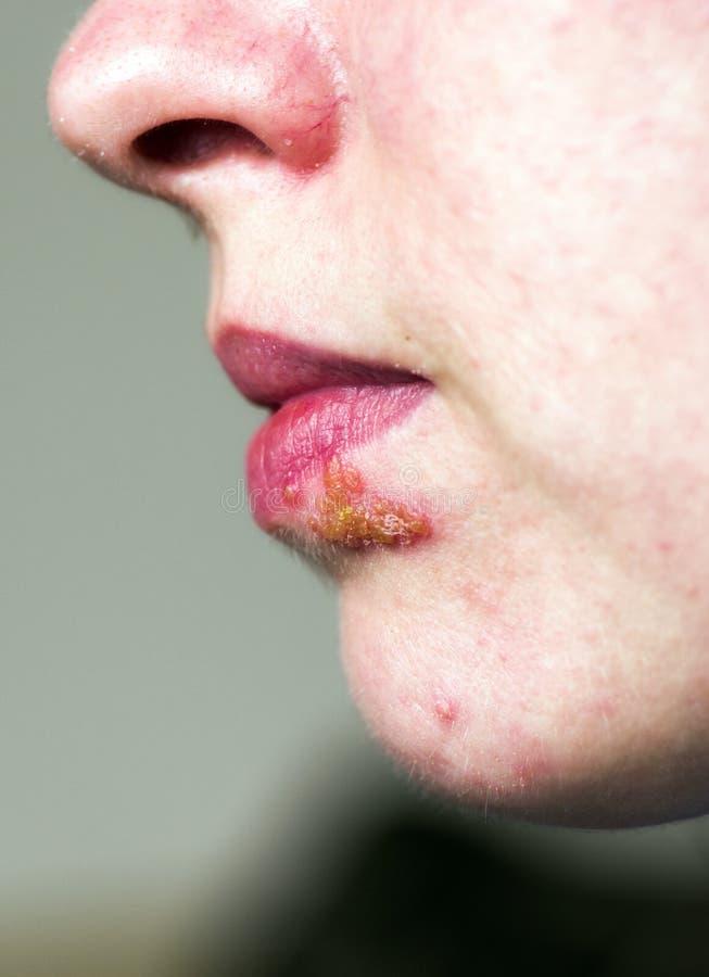 Herpes auf Lippe stockfotografie