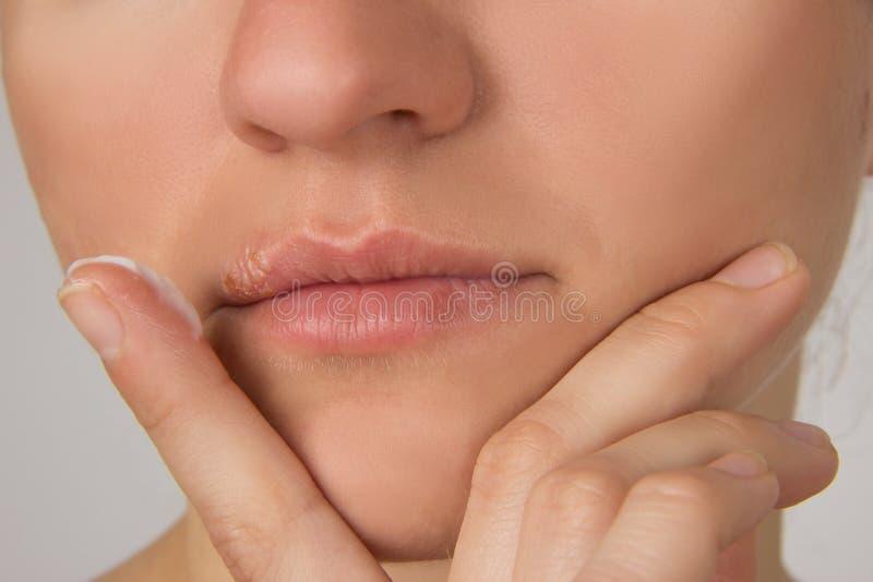 Herpes dorido com pus nos lábios da menina bonita nova e fotos de stock