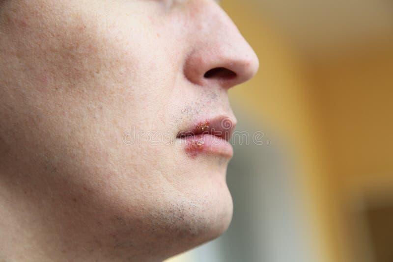Herpes en los labios fotos de archivo