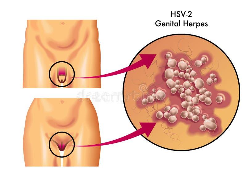 Herpes genital stock de ilustración