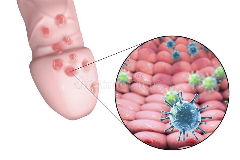Herpes Genital, Lesiones Y Virus Stock de ilustración
