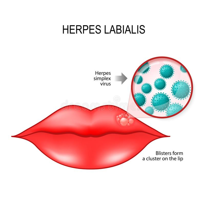 Herpes labialis on the lips vector illustration
