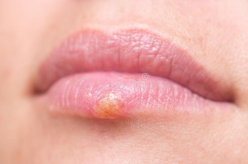 Herpes on lips stock photography
