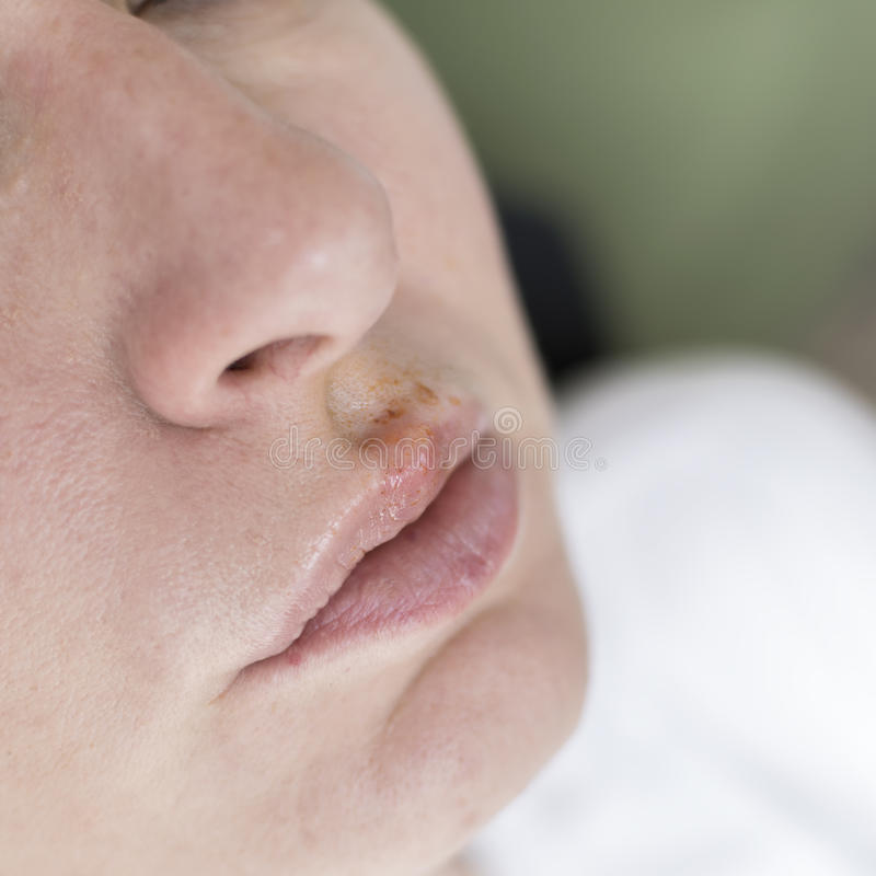 Herpes on the lips of the young woman stock photos