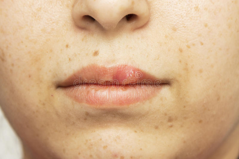 Herpes oral cold sore blisters on the lips- herpes simplex royalty free stock photos