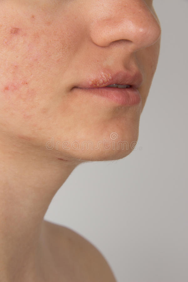 Herpes with pus on the lips of a young girl and pimples on the f royalty free stock photos