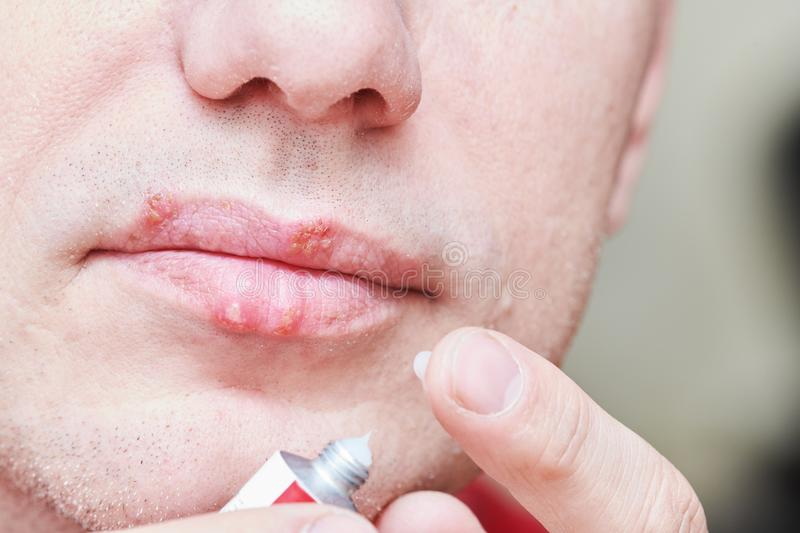 Herpes simplex virus infection. Lips treatment by cream. Male face. royalty free stock photos