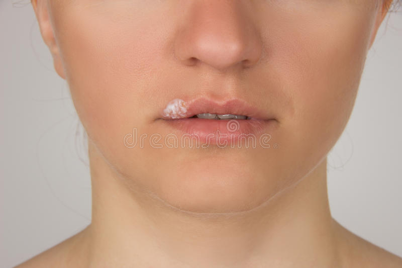 Herpes sore with pus on the lips of the young beautiful girl and royalty free stock photo