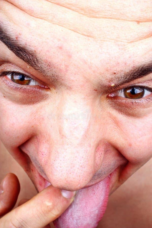 Herpes trądzik na twarzy fotografia stock
