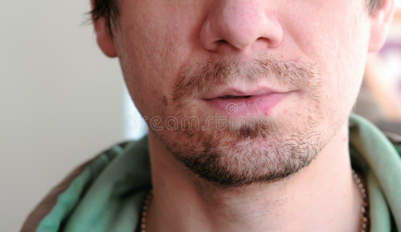 herpes wargi traktowanie Zakończenie mężczyzna ` s wargi z herpes Frontowy widok zdjęcie stock