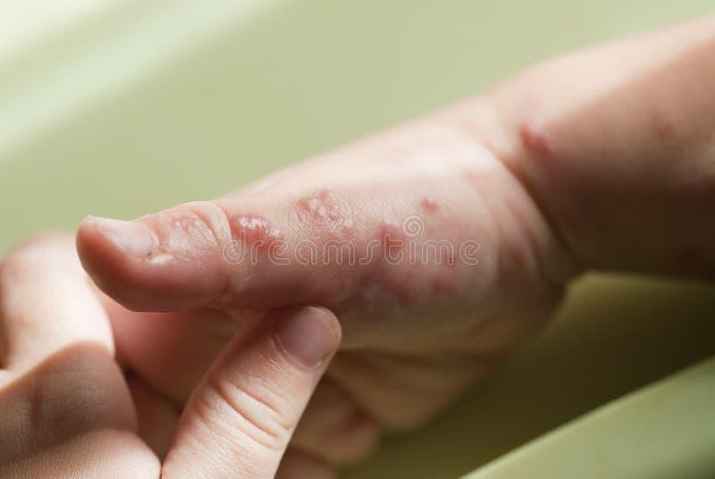 Herpes zoster in een kindhand. stock foto's