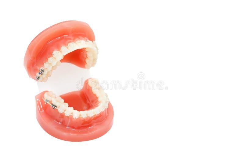 Herramienta ortodóntica del modelo y del dentista - los dientes de la demostración modelan con los apoyos de cerámica en los d foto de archivo libre de regalías