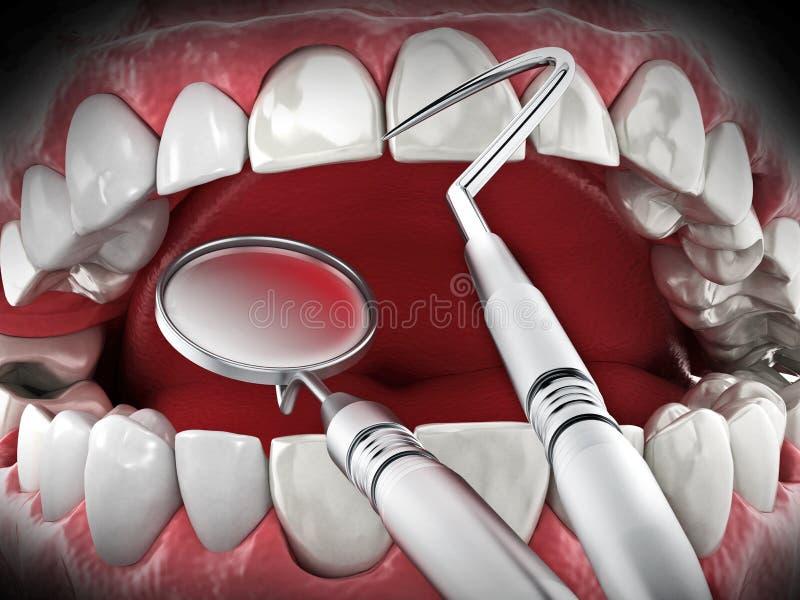Herramientas profesionales del dentista aisladas en el fondo blanco ilustración 3D stock de ilustración
