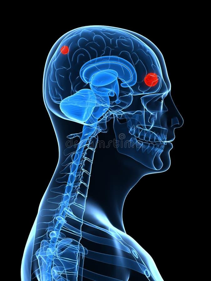 Hersen tumor vector illustratie