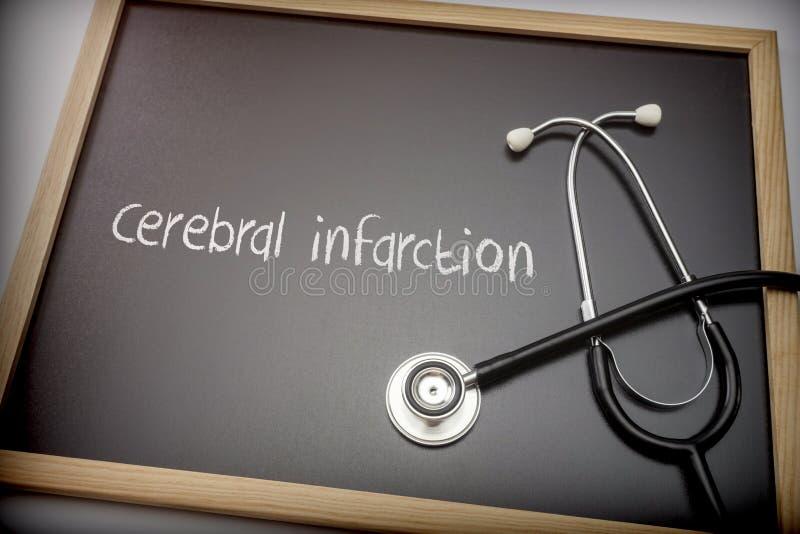 Hersendieinfarct in krijt op een bordzwarte wordt geschreven naast een stethoscoop stock foto's