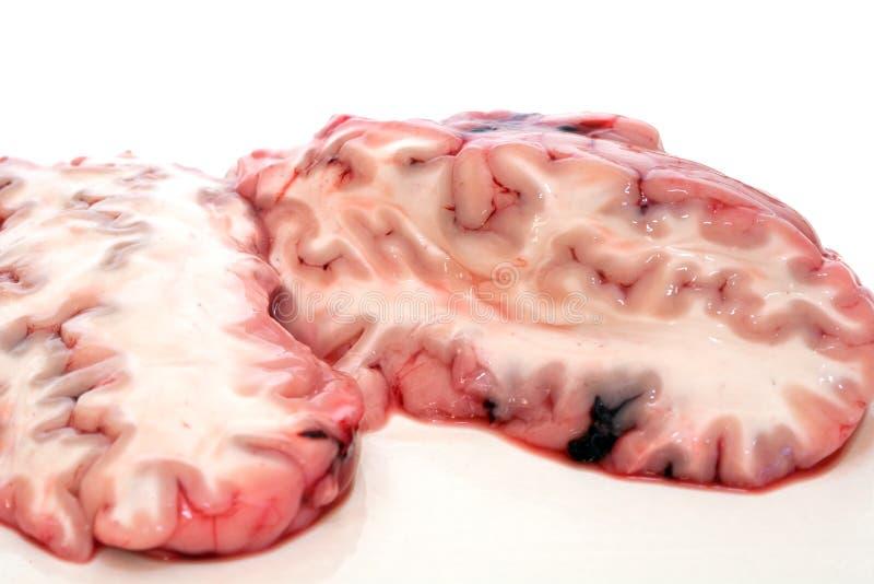 Hersenen stock afbeelding