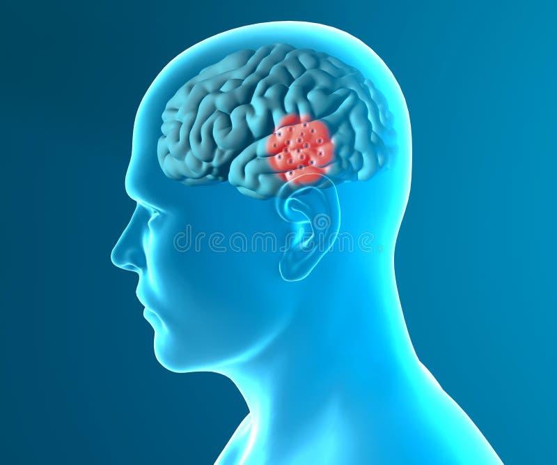 Hersenen degeneratieve ziekten Parkinson royalty-vrije illustratie
