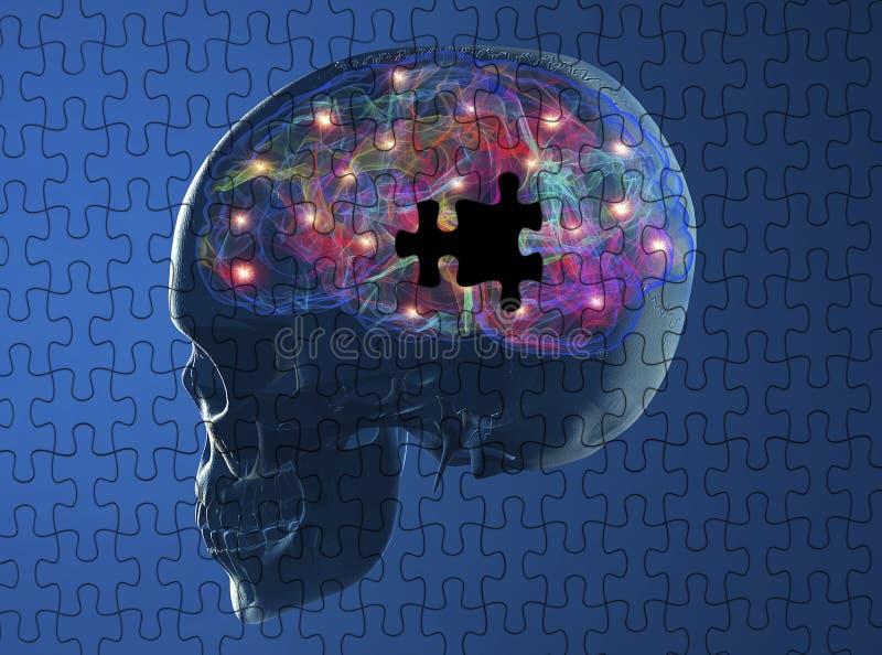 Hersenen degeneratieve ziekten Parkinson, Alzheimer vector illustratie