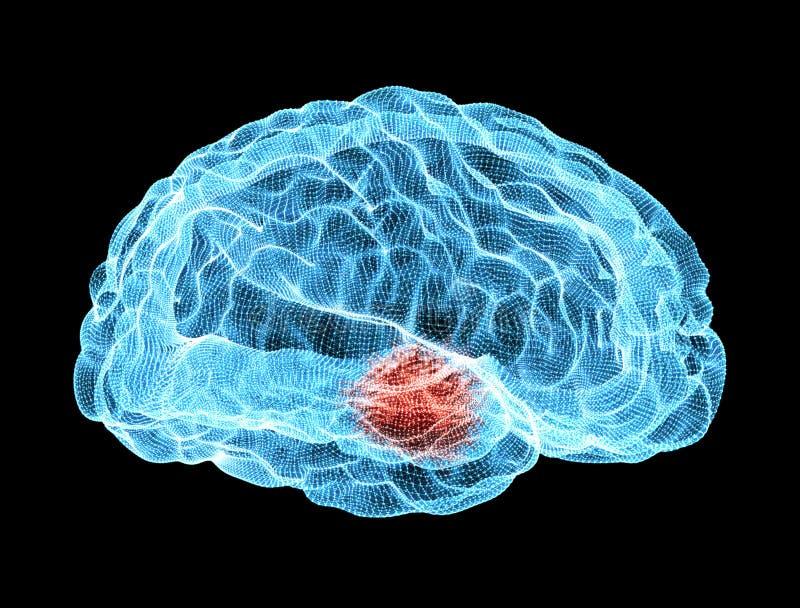 Hersenen degeneratieve ziekten, Parkinson, lichaam, gezicht stock illustratie