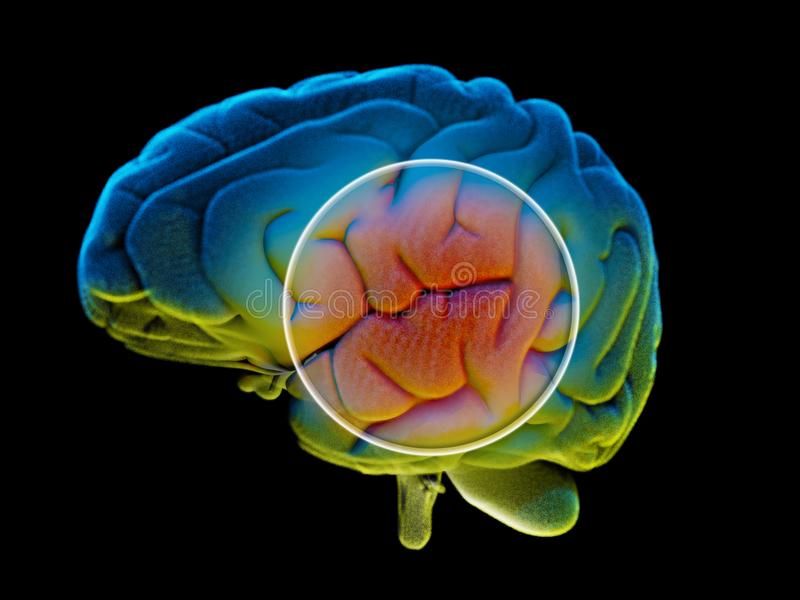 Hersenen degeneratieve ziekten, Parkinson, synapsen, neuronen, Alzheimer ` s royalty-vrije illustratie