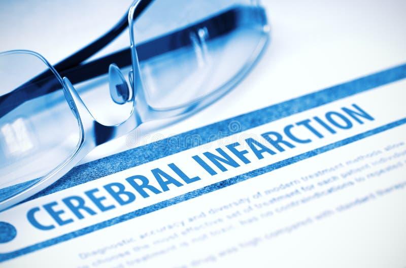 Herseninfarct geneeskunde 3D Illustratie stock afbeeldingen