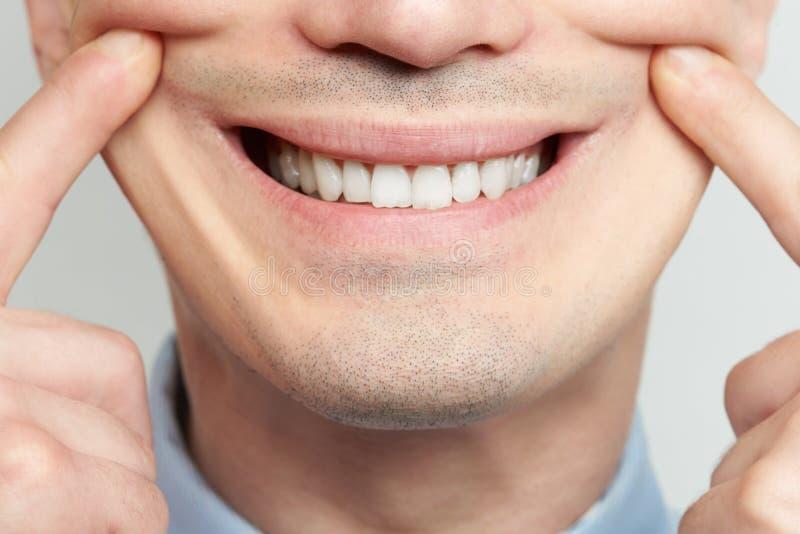 Herstellung des gefälschten Lächelns lizenzfreie stockbilder