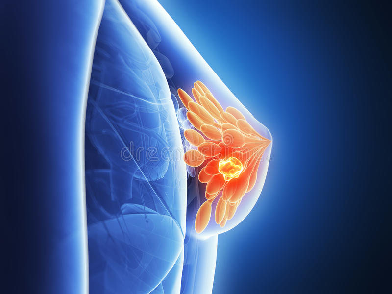 Hervorgehobener Brustkrebs lizenzfreie abbildung