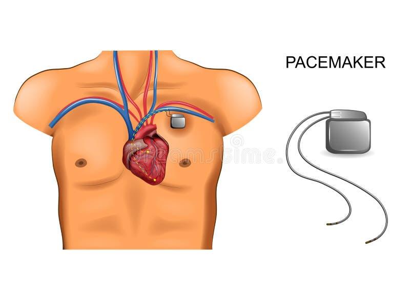 Herz und Schrittmacher kardiologie stock abbildung