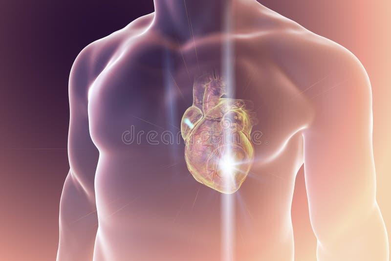 Herzinfarkt, coneptual Illustration lizenzfreie abbildung