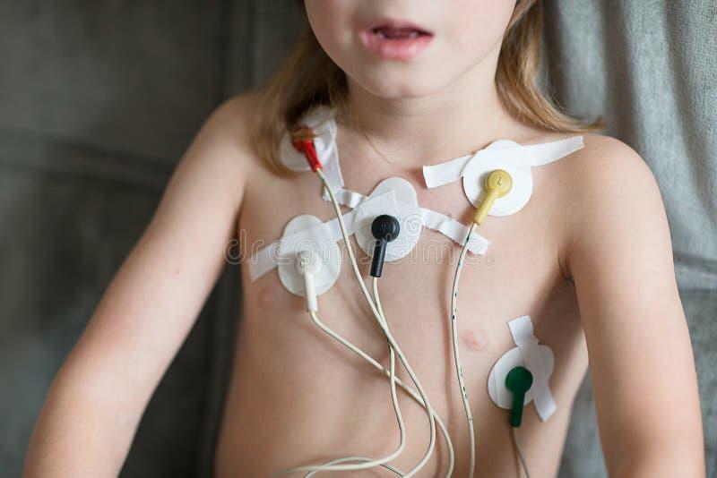 Herzkardiogramm unter Verwendung Holter lizenzfreies stockfoto