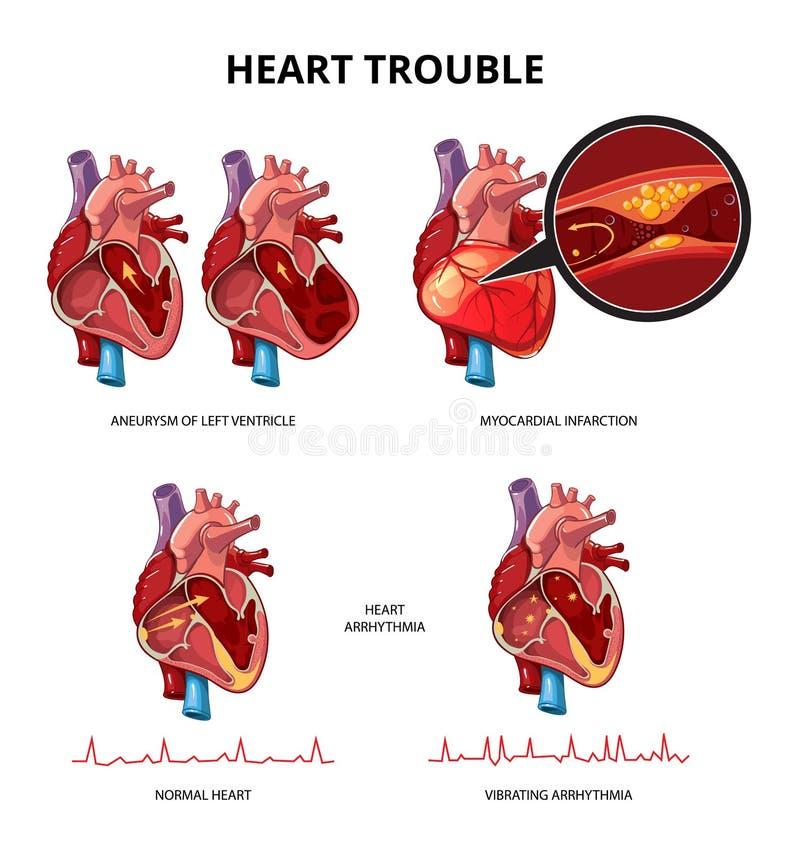 Herzkrankheitsüberträger infographics stock abbildung