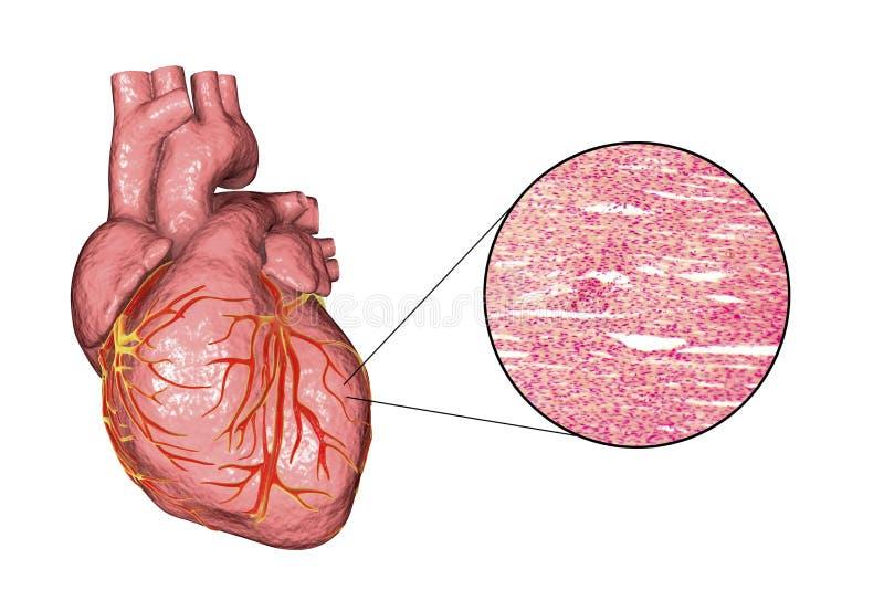 Herzmuskelstruktur lizenzfreie abbildung