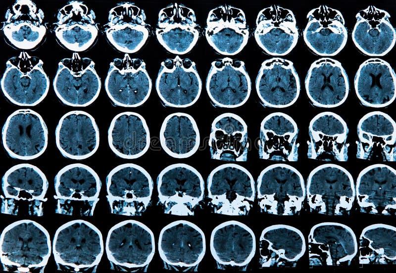 Het Aftasten van de Hersenen van Mri royalty-vrije stock foto