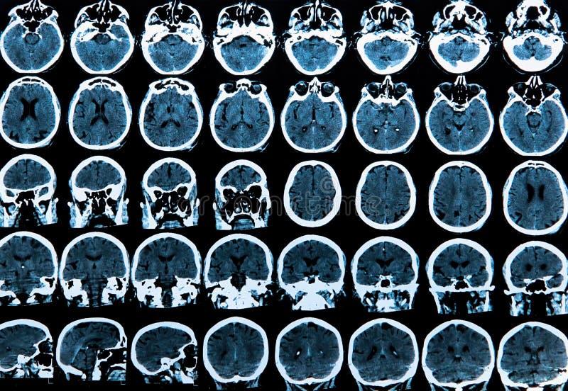 Het Aftasten van de Hersenen van Mri royalty-vrije stock foto's