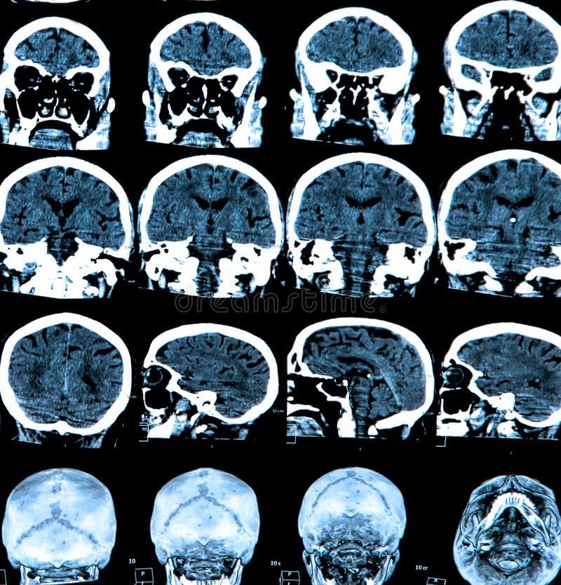 Het Aftasten van de Hersenen van Mri stock foto's