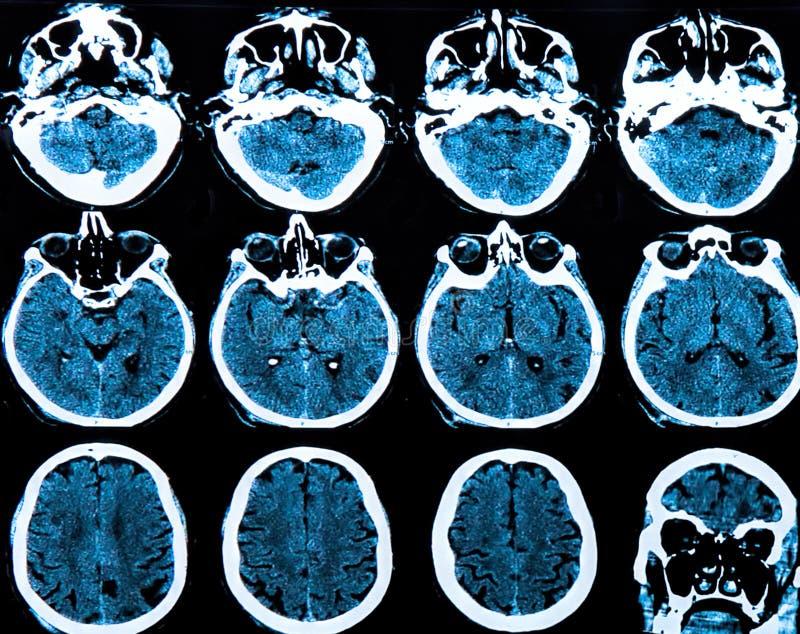 Het Aftasten van de Hersenen van Mri stock foto