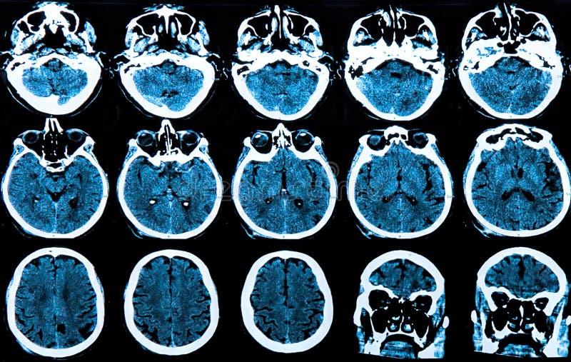 Het Aftasten van de Hersenen van Mri royalty-vrije stock afbeelding
