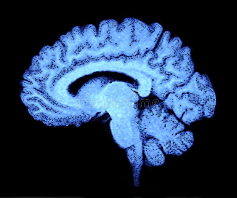 Het Aftasten van hersenen stock afbeeldingen