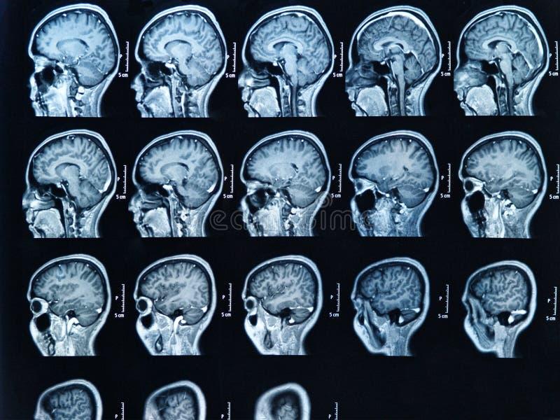 Het Aftasten van Hersenen MRI stock foto