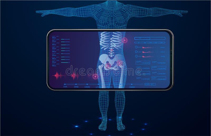 Het algemeen medische onderzoek van het Hudelement ui Vertoningsröntgenstraal vector illustratie
