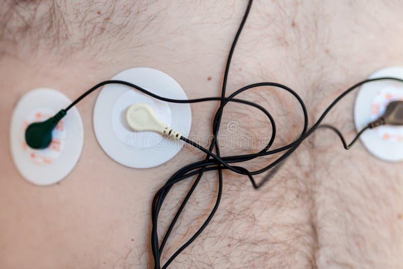 Het apparaat van de Holtermonitor op menselijk mannelijk lichaam Dagelijks cardiogramonderzoek Bovenmatige vette persoon Zeer ris stock foto's