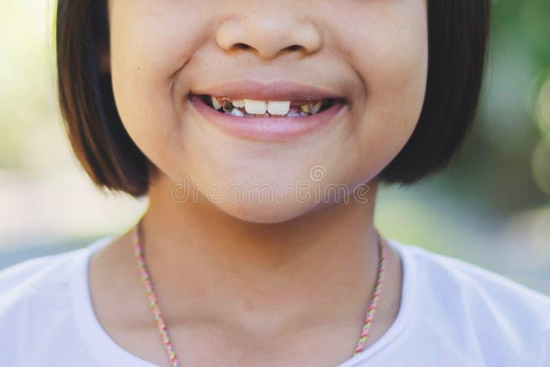Het Aziatische jonge geitje ` s rotte tanden royalty-vrije stock fotografie