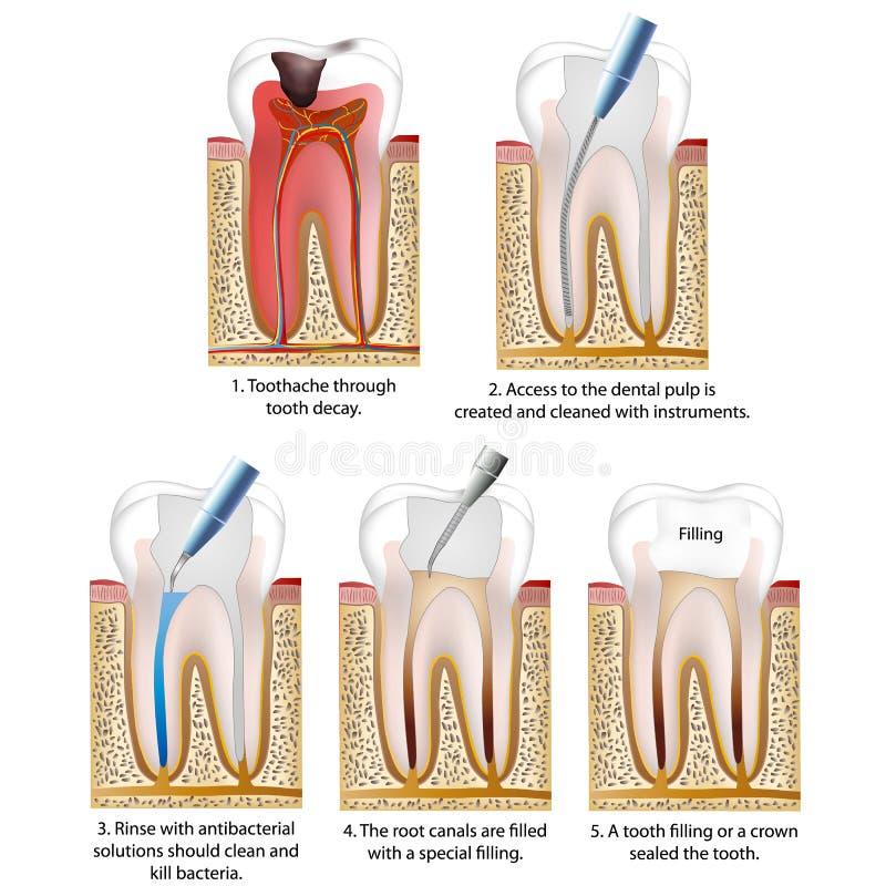 Het bederf vernietigde tand met een kroon wordt hersteld of een tand vullend vectorillustratieproces dat stock illustratie