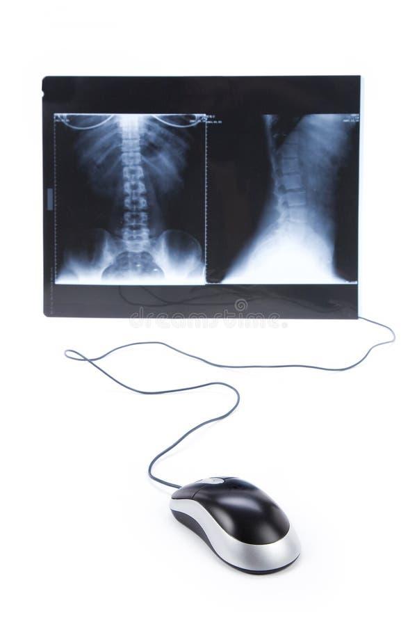 Het beeld van de röntgenstraal en computermuis stock foto