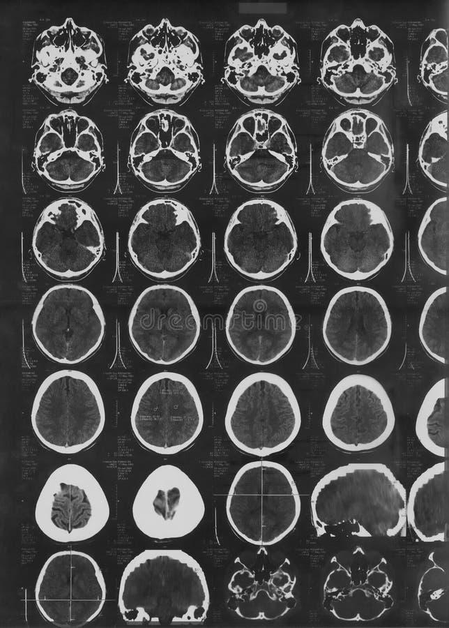 Het beeld van de röntgenstraal van de hersenen stock foto